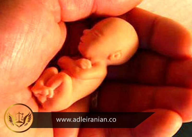 مجازات سقط جنین نامشروع